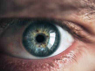 cerchiaggio-della-retina