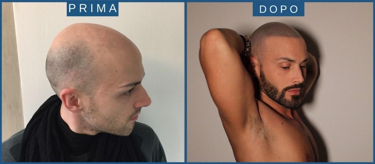 I consigli utili sulla tricopigmentazione; quando conviene e perché